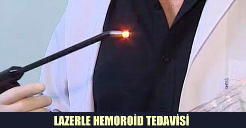 hemoroid lazer tedavisi Lazerle Tedavi Yöntemi