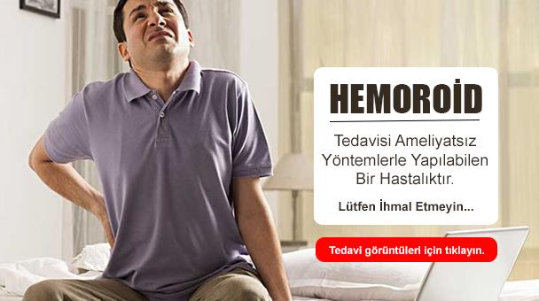 Hemoroid Tedavisi